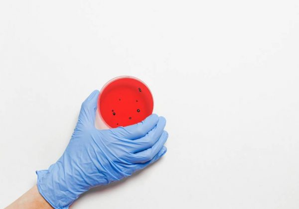 COVID-19 petri dish